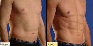 Homem pode fazer lipocavitação com ultrassom?