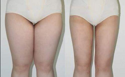 Tratamento para gordura localizada na coxa