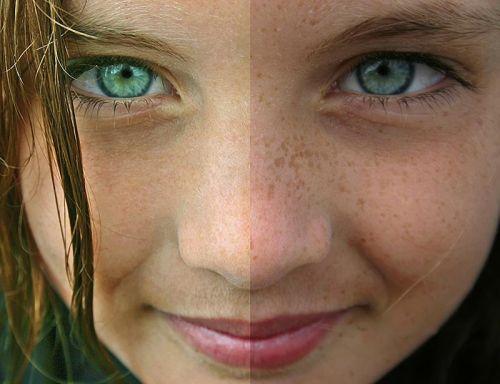 sardas falsas antes e depois