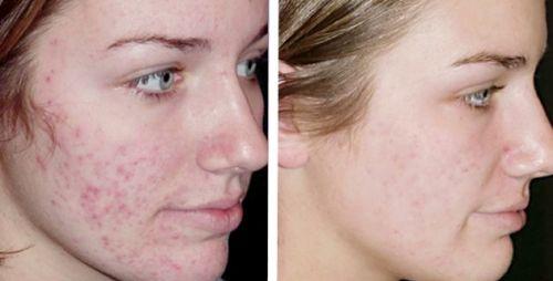 acne antes e depois