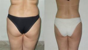 antes e depois bambuterapia