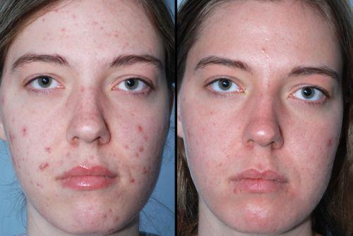 antes e depois da acne