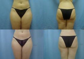 antes e depois da bambuterapia