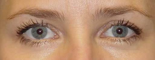 area dos olhos