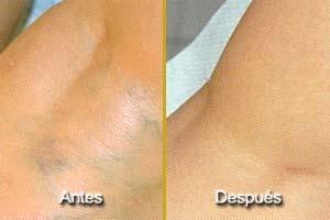 bambuterapia antes e depois