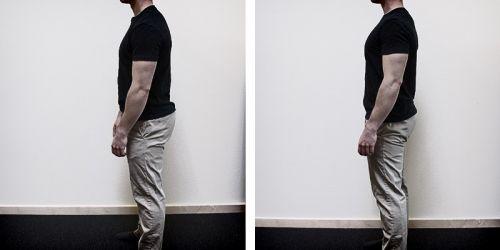 como melhorar a postura