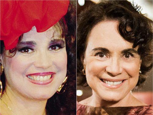 famosos antes e depois das lentes dentarias
