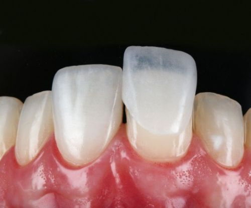 lente de contato para os dentes o que é