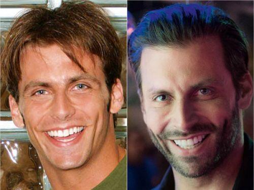 lente dental famosos antes e depois