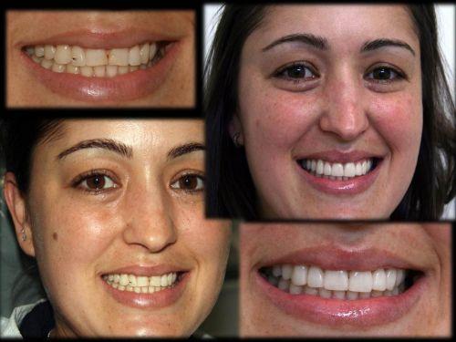 lentes dentais antes e depois