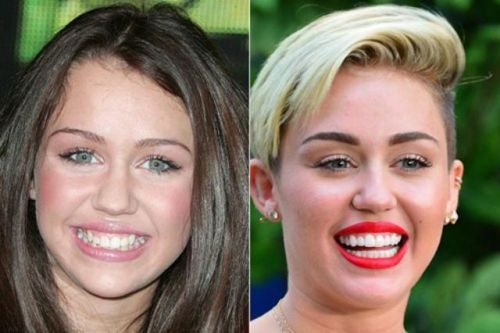 miley dentes antes e depois