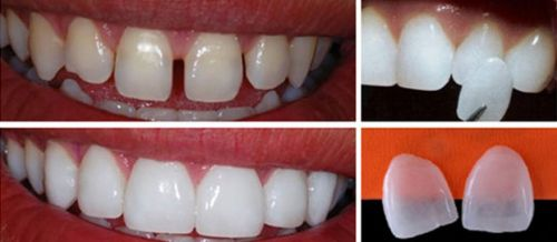 tecnica lente de contato dental