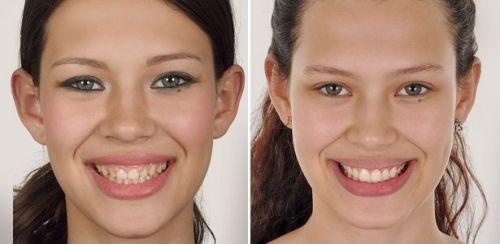 tudo sobre a lente de contato dental
