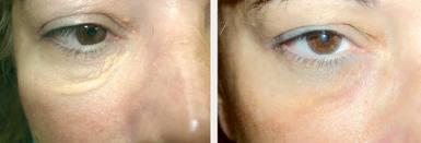 xantelasma antes e depois