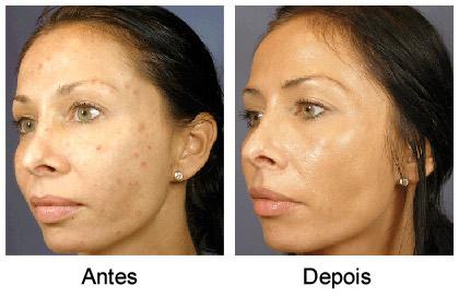 acido retinoico antes e depois