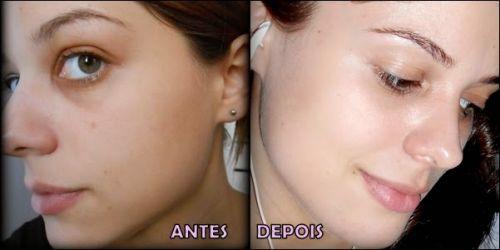 adcos antes e depois