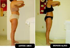 antes e depois da bandagem gessada