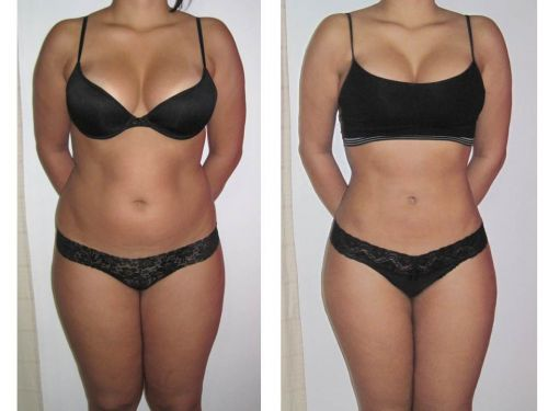 antes e depois da vibrolipo