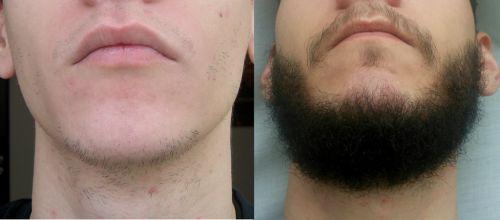 antes e depois do implante de barba