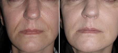 antes e depois vitamina c
