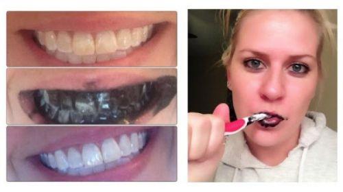 carvão para clarear os dentes