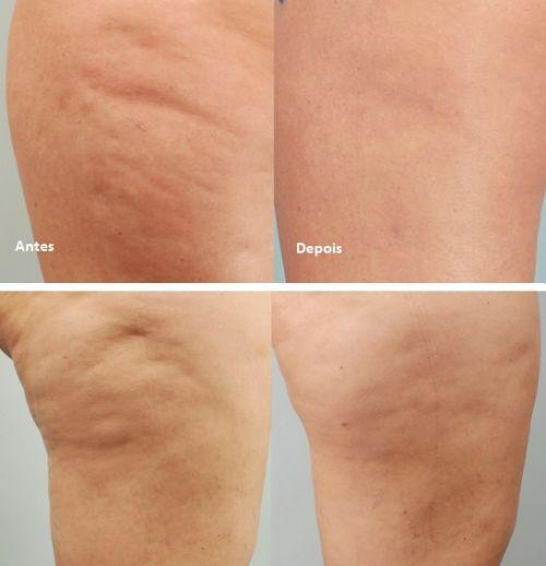 celulite antes e depois da gessoterapia