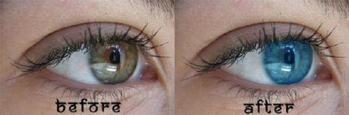 cirurgia para mudar a cor dos olhos como é