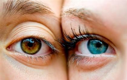 cirurgia para mudar a cor dos olhos o que é