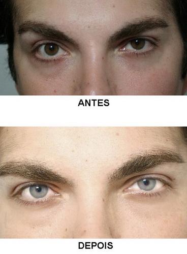 cirurgia para mudar a cor dos olhos preço