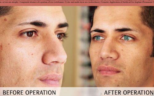 cirurgia para mudar a cor dos olhos riscos