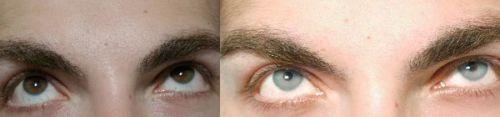 cirurgia para mudar a cor dos olhos