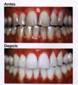 clareamento carvão dentes