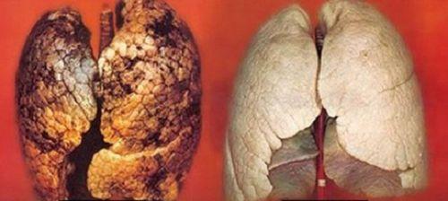 comparação pulmões