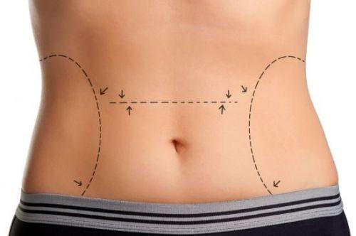 gordura visceral lipoaspiração