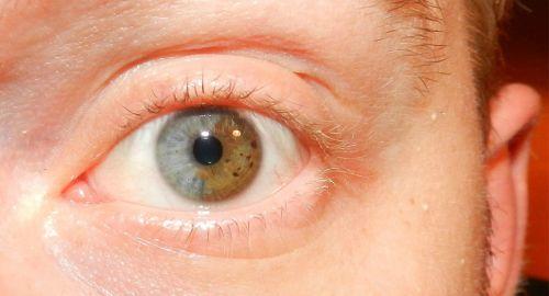 mudar a cor dos olhos operação