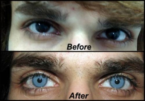 mudar a cor dos olhos
