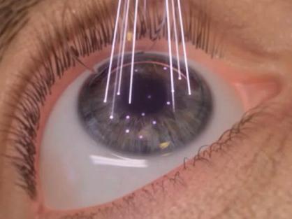operação olhos