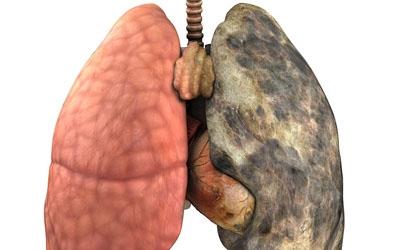 pulmão de um fumante