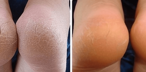 rachadura nos pés antes e depois