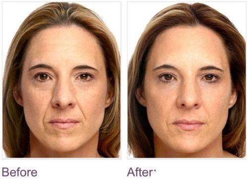 resultados com acido retinoico