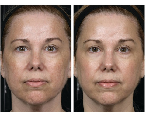 resultados vitamina C skinceuticals