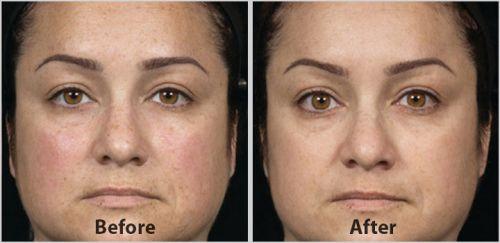 skinceuticals antes e depois