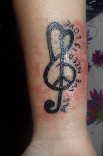 tatoo infeccionada