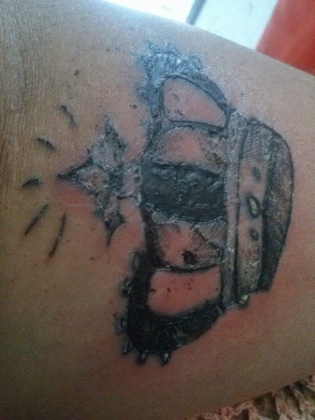 tatoo inflamada como tratar