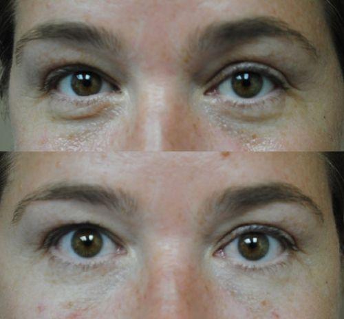 tratamento vitamina c para a pele