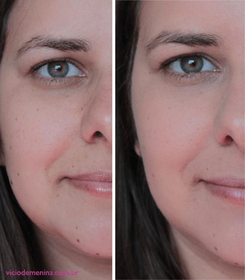 Conforama Aparador Atlanta ~ Vitamina C para o rosto Marcas, dicas, antes e depois