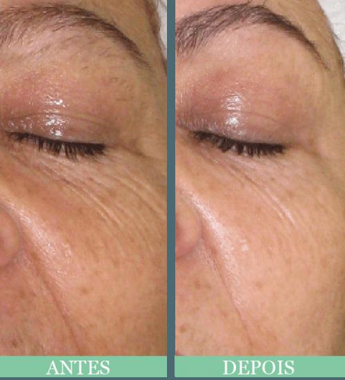vitamina C para o rosto resultados