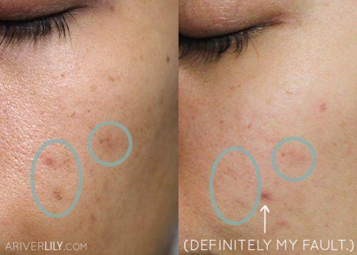 vitamina c acne rosto