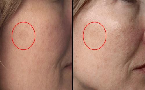 vitamina c rosto resultados