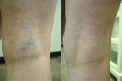 Escleroterapia-antes-e-depois